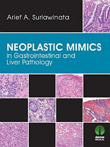 Neoplastic Mimics in Gastrointestinal and Liver Pathology