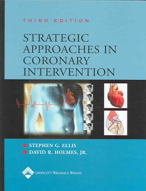 Strategic Approaches in Coronary Intervention