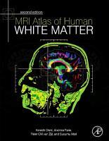 MRI Atlas of Human White Matter PDF