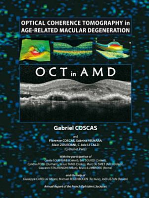 Optical Coherence Tomography in Age-Related Macular Degeneration