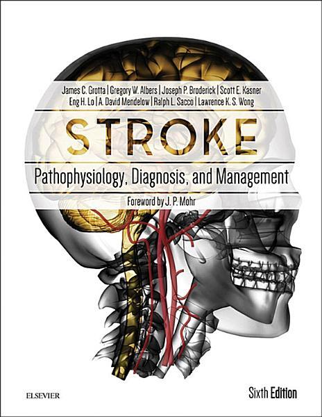 Stroke E Book