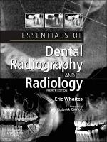 Essentials of Dental Radiography and Radiology E Book PDF
