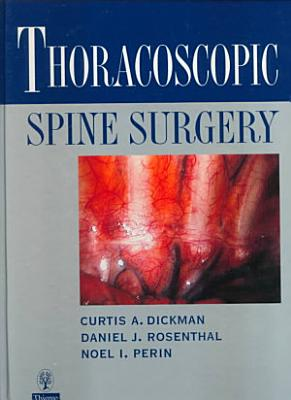 Thoracoscopic Spine Surgery PDF