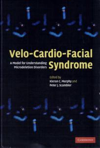 Velo Cardio Facial Syndrome