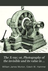 The X-ray; Or, Photography of the Invisible and Its Value in Surgery