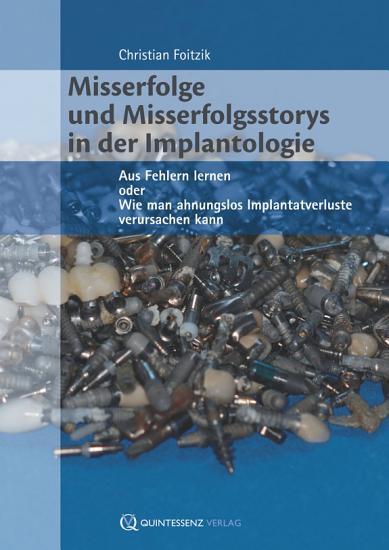 Misserfolge und Misserfolgsstorys in der Implantologie PDF