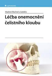 Léčba onemocnění čelistního kloubu