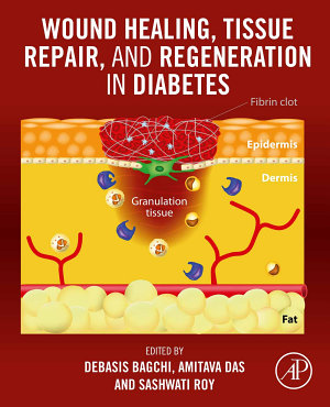 Wound Healing, Tissue Repair, and Regeneration in Diabetes