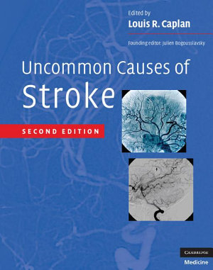 Uncommon Causes of Stroke