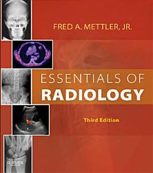 Essentials of Radiology E Book PDF
