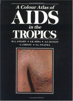 A Colour Atlas of AIDS in the Tropics