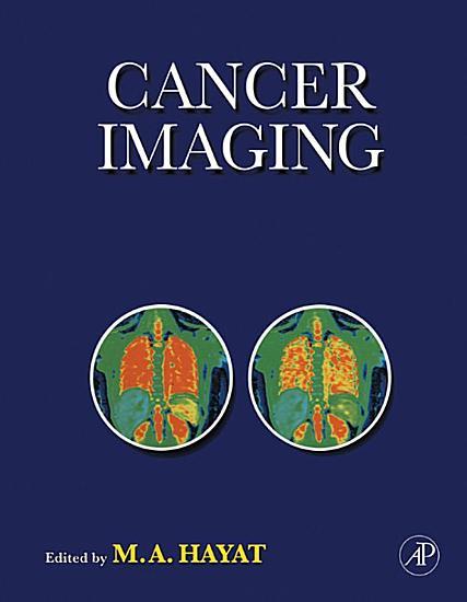Cancer Imaging PDF