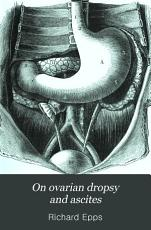 On ovarian dropsy and ascites  their diagnosis and treatment  Also on prolapsus of the uterus PDF