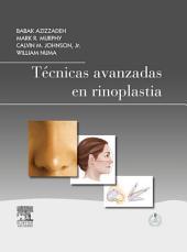 Técnicas avanzadas en rinoplastia + StudentConsult en español