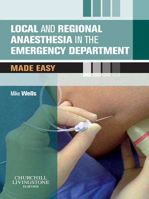 Local and Regional Anaesthesia in the Emergency Department Made Easy E Book PDF