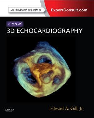 Atlas of 3D Echocardiography E-Book