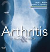 Arthritis in Black and White E-Book: Edition 3
