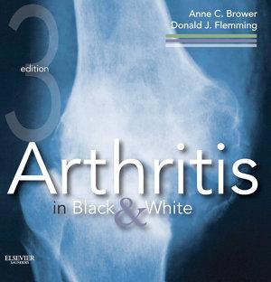 Arthritis in Black and White E-Book