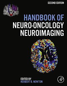 Handbook of Neuro Oncology Neuroimaging
