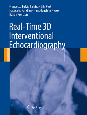 Real Time 3D Interventional Echocardiography