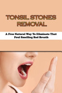 Tonsil Stones Removal