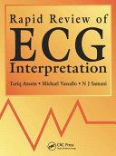 Rapid Review of ECG Interpretation PDF