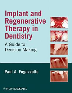 Implant and Regenerative Therapy in Dentistry PDF