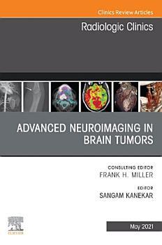Advanced Neuroimaging in Brain Tumors  An Issue of Radiologic Clinics of North America  E Book PDF