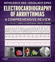 Electrocardiography of Arrhythmias  A Comprehensive Review E Book PDF