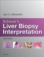 Scheuer's Liver Biopsy Interpretation E-Book