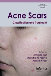 Acne Scars: Classification and Treatment