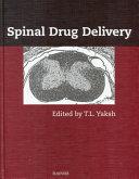 Spinal Drug Delivery