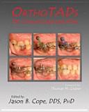 OrthoTADs