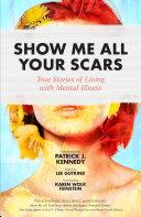 Show Me All Your Scars [Pdf/ePub] eBook