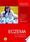 Eczema Ayf