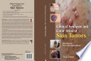 Clinical Synopsis and Color Atlas of Skin Tumors