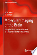 Molecular Imaging Of The Brain Book PDF