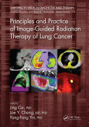 Principles and Practice of Image Guided Radiation Therapy of Lung Cancer
