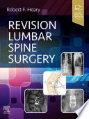 Revision Lumbar Spine Surgery E Book
