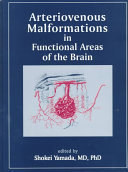 Arteriovenous Malformations in Functional Areas of the Brain