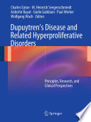Dupuytren   s Disease and Related Hyperproliferative Disorders