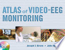 Atlas of Video EEG Monitoring