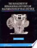 The Management of Haemangiomas and Vascular Malformations of Head and Neck Book