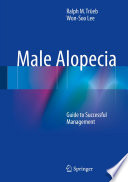 Male Alopecia