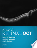 Atlas of Retinal OCT E-Book