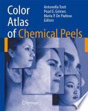 Color Atlas of Chemical Peels