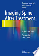 Imaging Spine After Treatment Book PDF