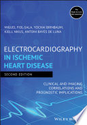 Electrocardiography in Ischemic Heart Disease
