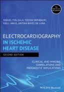 Electrocardiography in Ischemic Heart Disease Pdf/ePub eBook