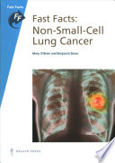 Fast Facts  Non Small Cell Lung Cancer